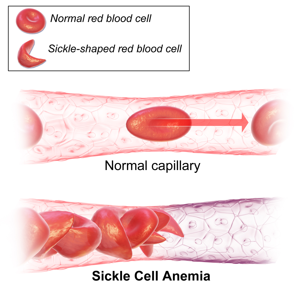 what you need to know about sickle cell | brunch and slay